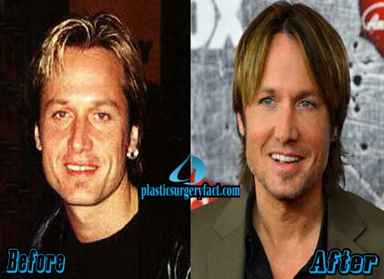 Keith Urban Plastic Surgery Before and After