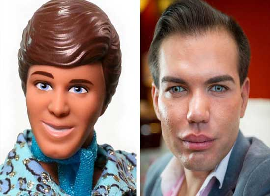 Ken Doll Plastic Surgery Before and After Pictures