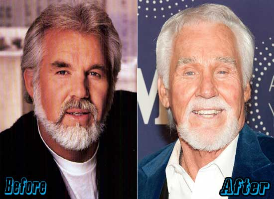 Kenny Rogers Worst Plastic Surgery
