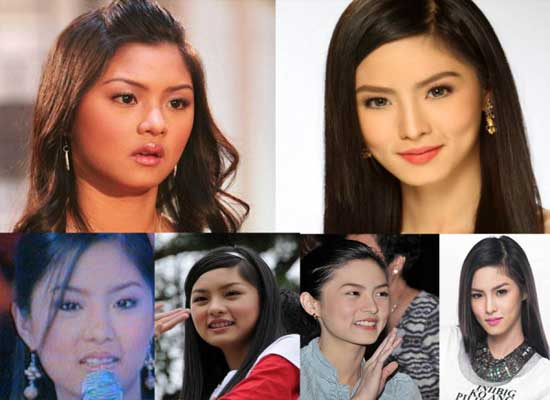 Kim Chiu Before and After Photos