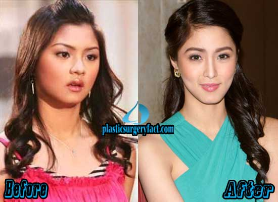 Kim Chiu Nose Job Before and After