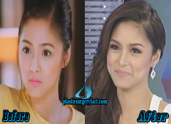 Kim Chiu Plastic Surgery Before and After