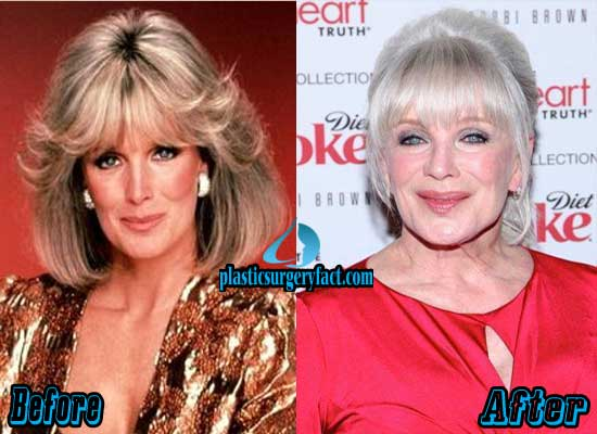 Linda Evans Facelift Before and After