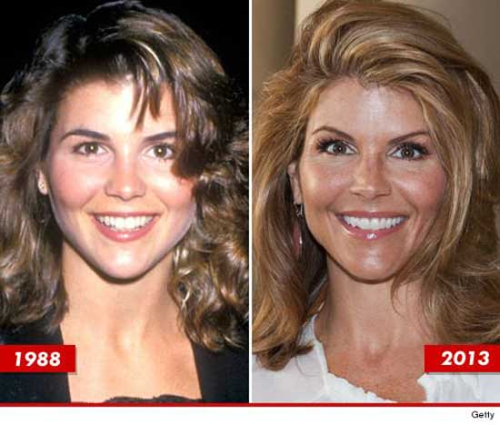 Lori Loughlin Plastic Surgery Pictures