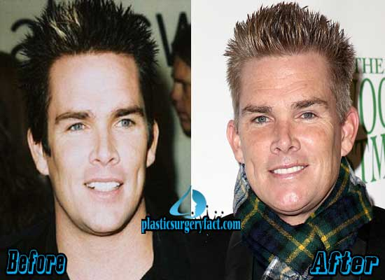 Mark Mcgrath Before and After Plastic Surgery