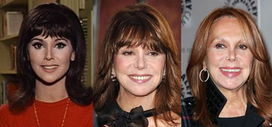 Marlo Thomas Before and After Photos