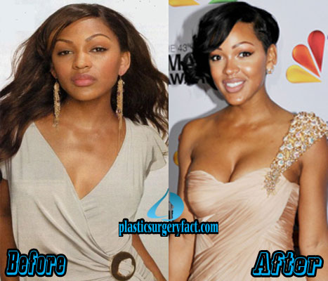 Meagan Good Breast Augmentation