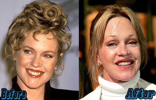 Melanie Griffith Extreme Plastic Surgery
