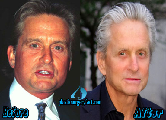 Michael Douglas Plastic Surgery Before After