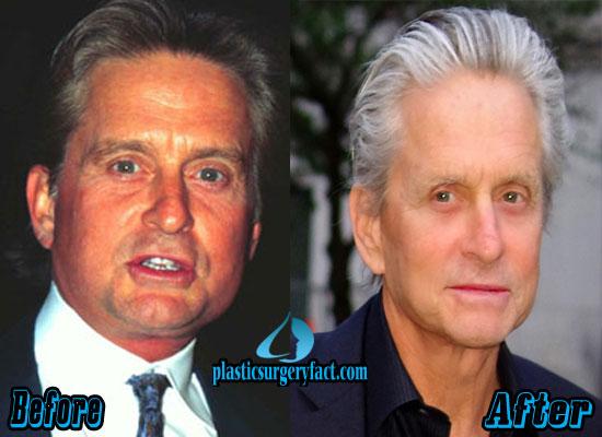 Michael Douglas Plastic Surgery Before After