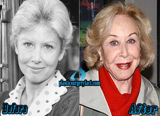 Michael Learned Before and After Plastic Surgery