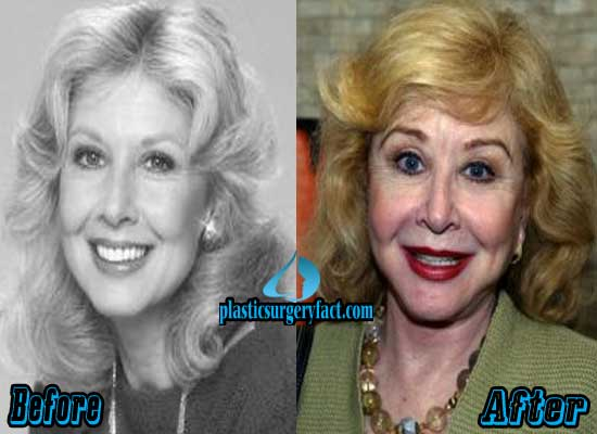 Michael Learned Plastic Surgery Before and After