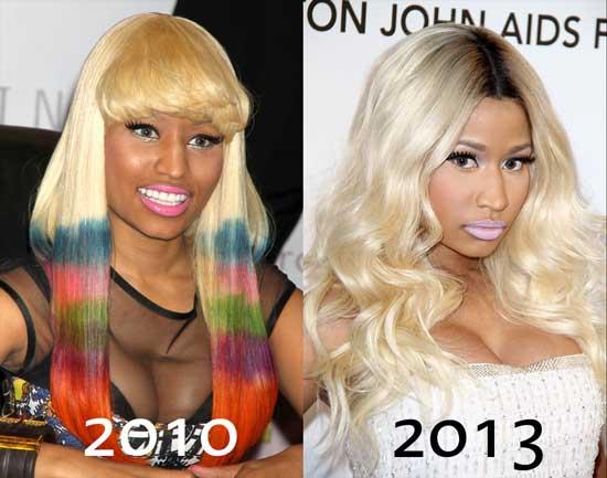 Nicki Minaj Boob Job Before and After