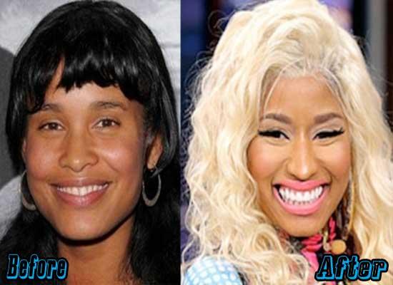 Nicki Minaj Rhinoplasty Surgery Before and After