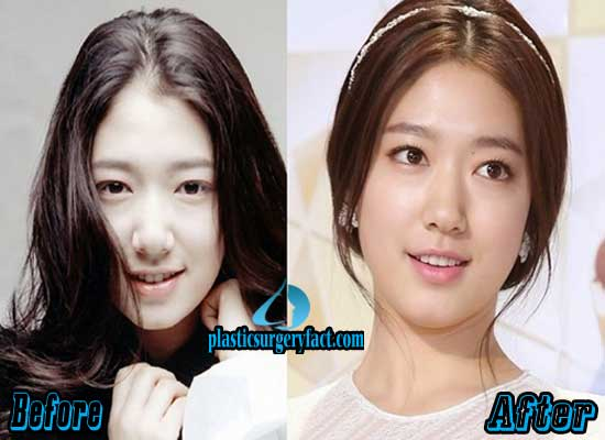 Park Shin Hye Nose Job Before and After