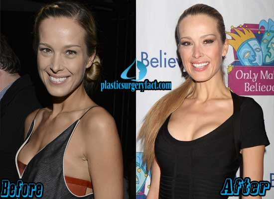 Petra Nemcova Breast Augmentation Before and After