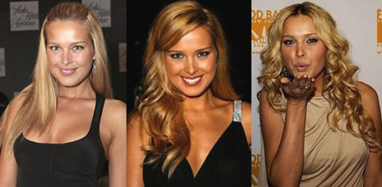 Petra Nemcova Plastic Surgery Before and After