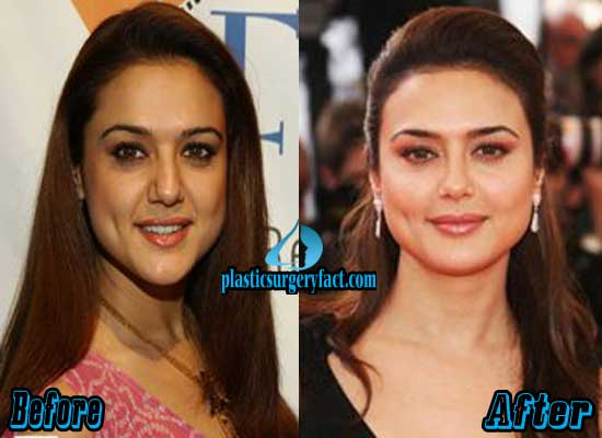 Preity Zinta Before and After Pictures