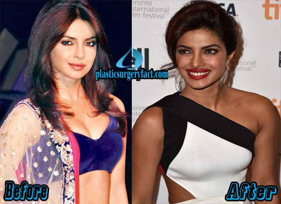 Priyanka Chopra Breast Augmentation Before and After