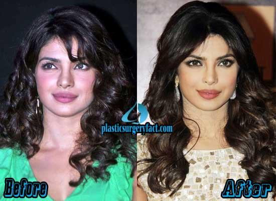 Priyanka Chopra Nose Job Before and After