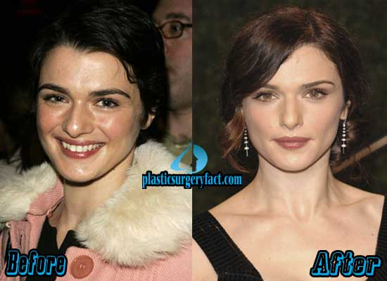 Rachel Weisz Nose Job Before and After