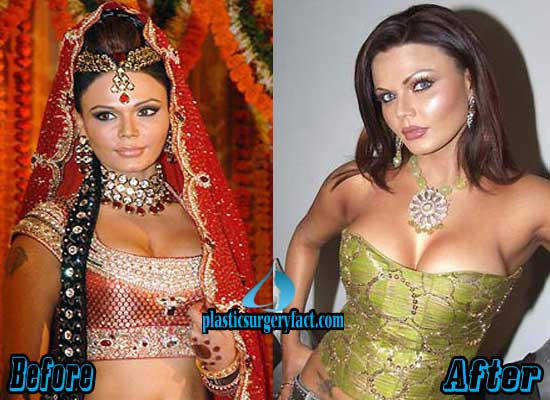 Rakhi Sawant Breast Implants Before and After