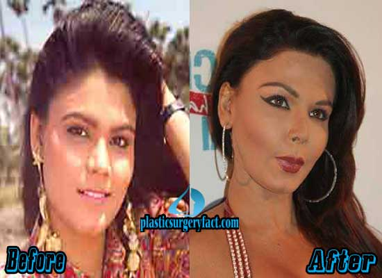 Rakhi Sawant Nose Job Before and After