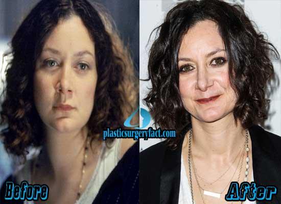 Sara Gilbert Nose Job Before and After