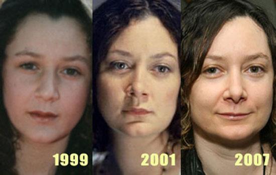 Sara Gilbert Plastic Surgery Before and After Photos