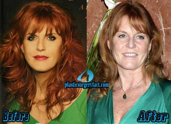 Sarah Ferguson Before and After Photos