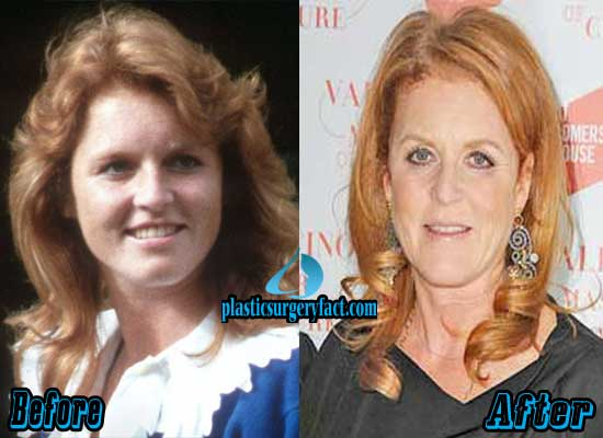 Sarah Ferguson Before and After Plastic Surgery