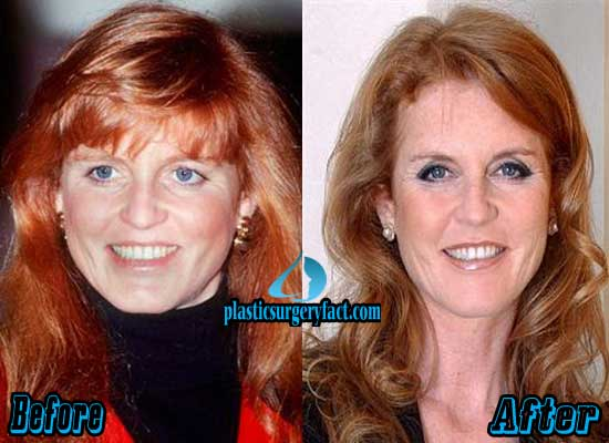 Sarah Ferguson Plastic Surgery Before and After