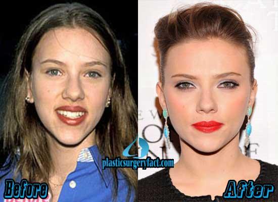 Scarlett Johansson Plastic Surgery Pictures