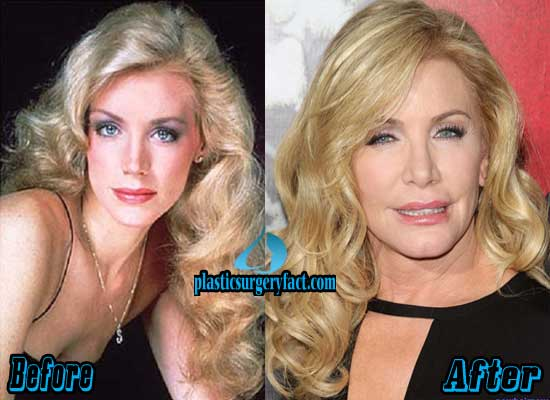 Shannon Tweed Before and After Plastic Surgery