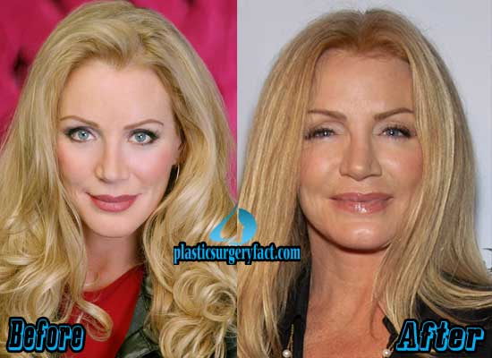 Shannon Tweed Plastic Surgery Before and After