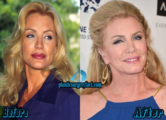 Shannon Tweed Plastic Surgery Facelift