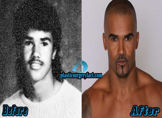 Shemar Moore Before and After Plastic Surgery