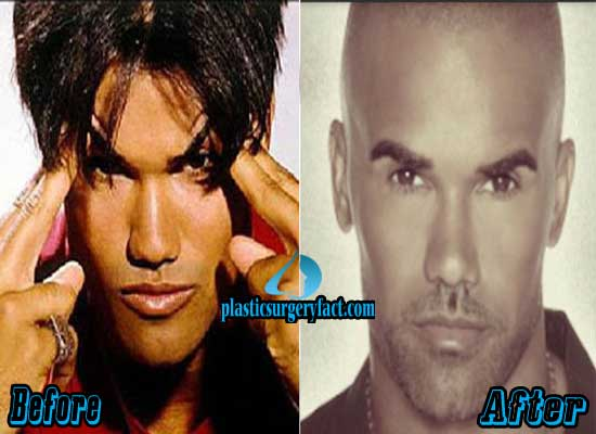 Shemar Moore Nose Job Before and After