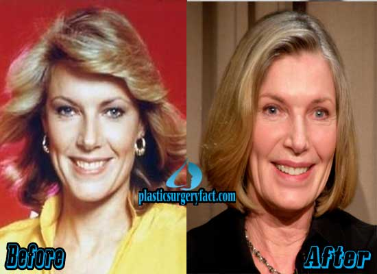 Susan Sullivan Before and After Plastic Surgery