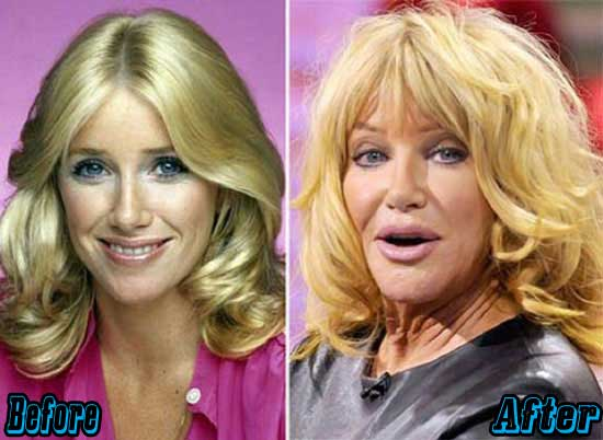 Suzanne Somers Extreme Plastic Surgery
