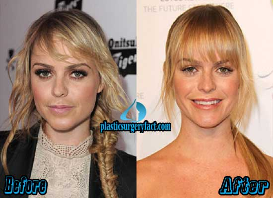 Taryn Manning Before and After Plastic Surgery