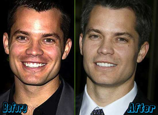 Timothy Olyphant Plastic Surgery Before After
