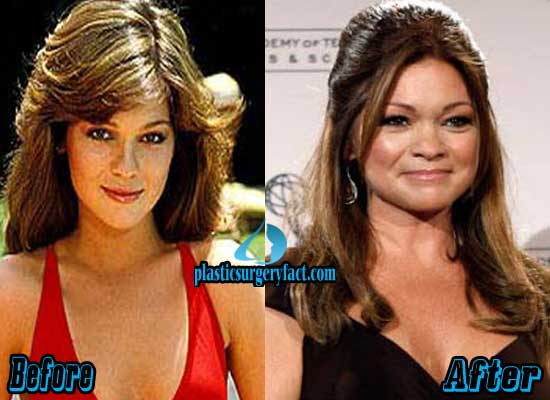 Valerie Bertinelli Before and After Plastic Surgery