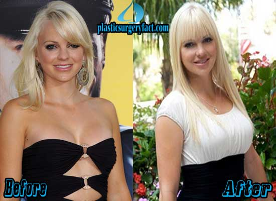 Anna Faris Breast Augmentation Before and After