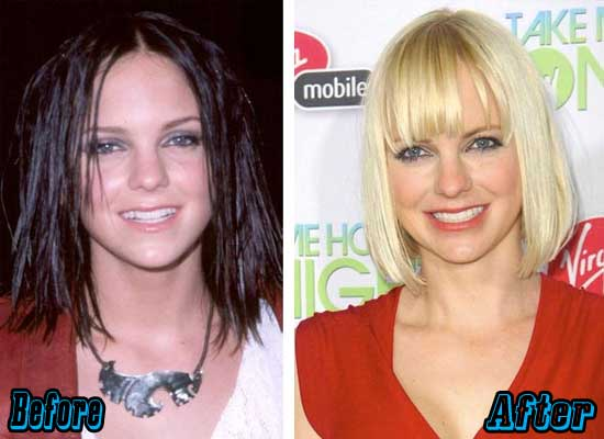 Anna Faris Rhinoplasty Surgery Before and After