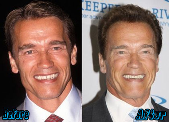 Arnold Schwarzenegger Before and After Plastic Surgery