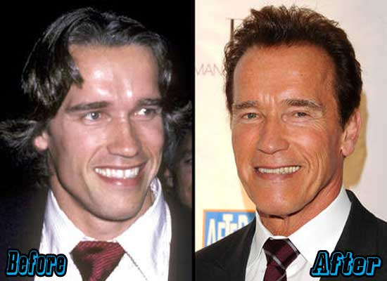 Arnold Schwarzenegger Plastic Surgery Before and After