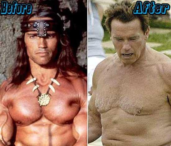 Arnold Schwarzenegger Plastic Surgery Pictures