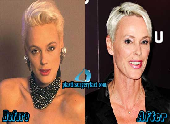 Brigitte Nielsen Before and After Plastic Surgery