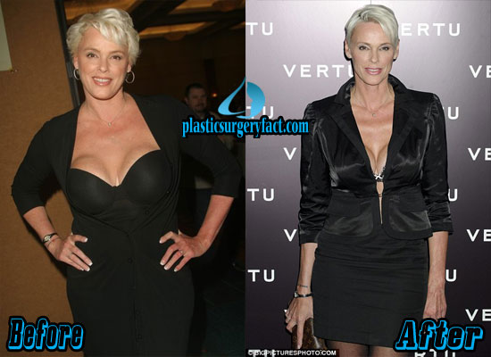 Brigitte Nielsen Breast Reduction Before and After